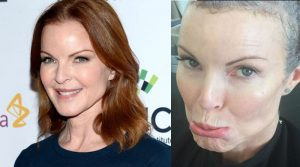 Marcia Cross e la lotta al cancro